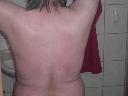 Lupus .12.2010-3