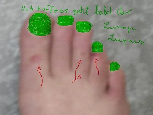 Lupus Fuß