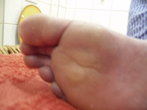 Fußentgiftung 2
