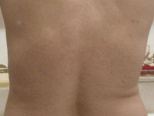 Weißer Fleck mit weißen Streifen -Foto vom 31.12.2011